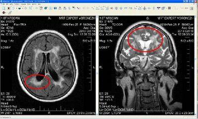 Перивентрикулярный и субкортикальный лейкоареоз головного мозга