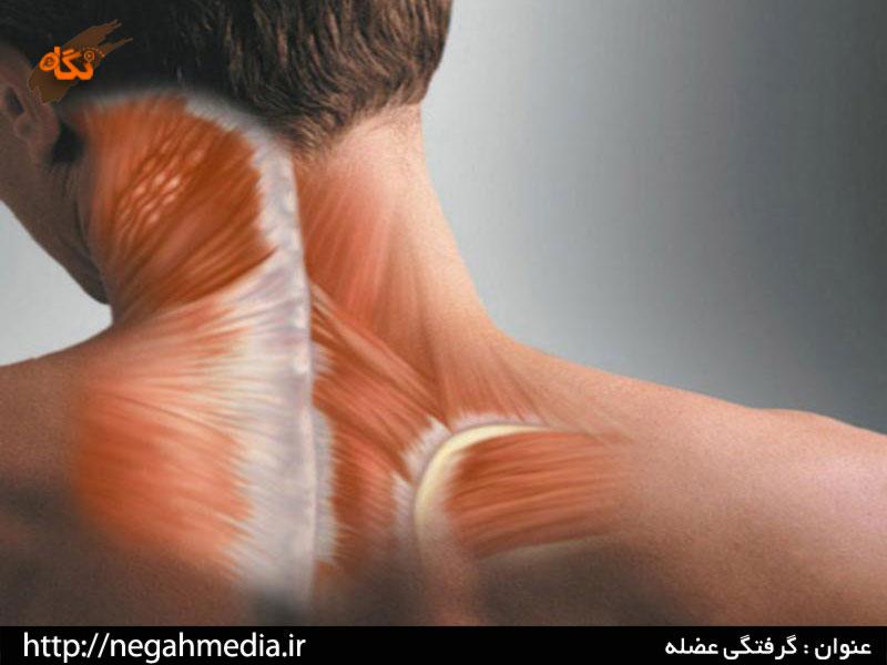 Мышечно тонический синдром пояснично крестцового отдела позвоночника