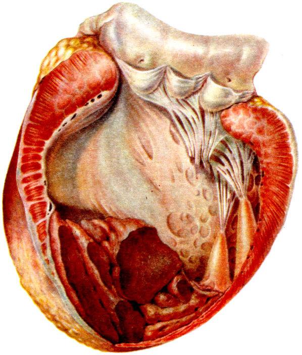 Аневризма аорты сердца