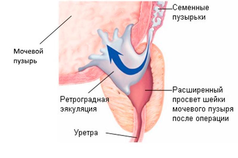 Эякуляция - физиология и характеристики семяизвержения