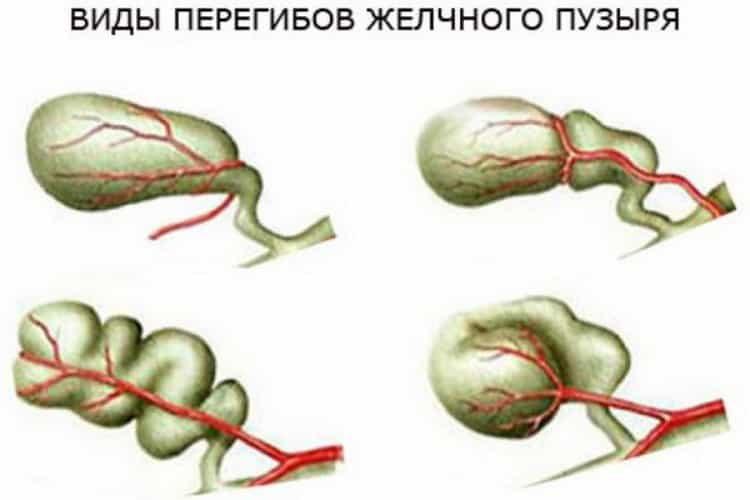 Перегиб желчного пузыря в области шейки: симптомы и лечение, деформация, загиб, изгиб, желчный пузырь с перегибом, как лечить, что это такое