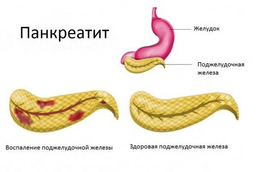 Поджелудочная железа: роль поджелудочной железы в организме человека, какую функцию выполняет поджелудочная железа