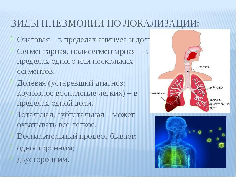 Причины и лечение полисегментарной пневмонии у взрослых