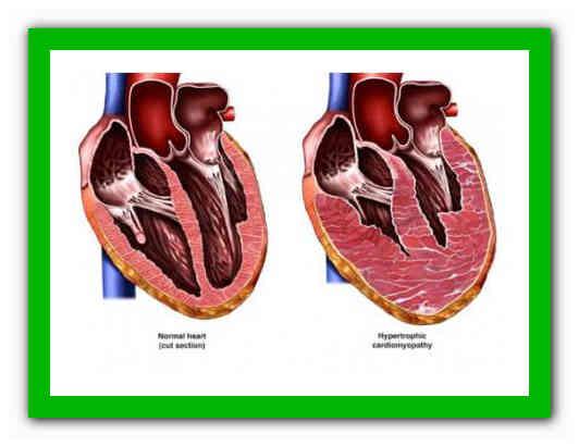 ✅ эксцентрическая гипертрофия миокарда левого желудочка что это такое - денталюкс.su