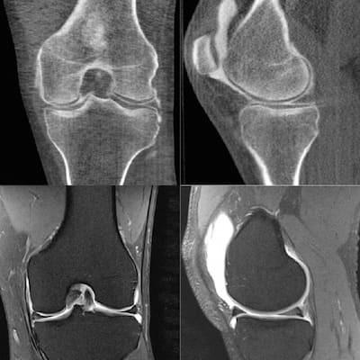 Как делают компьютерную томографию легких и бронхов - подготовка к исследованию, что показывает и стоимость