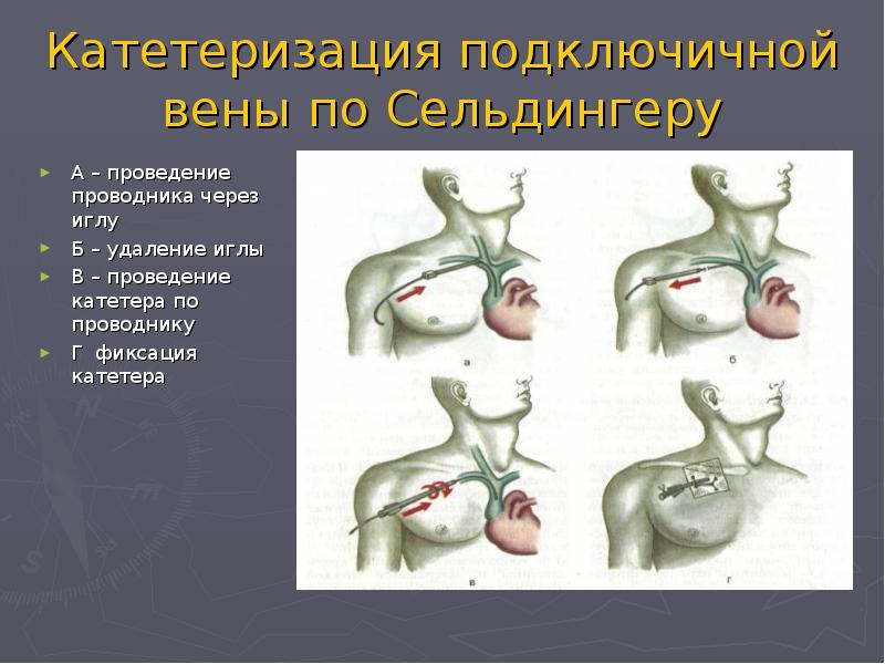 Постановка катетера в вену: особенности катетеризации вен, осложнения