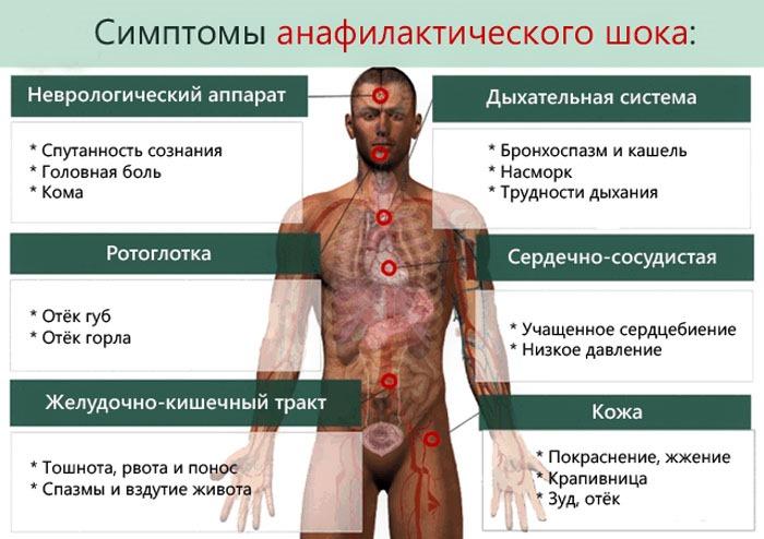 Сепсис, что это? симптомы, диагностика, лечение и осложнения сеписа