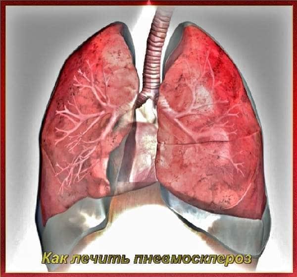 Пневмофиброз легких – что это такое? локальный, диффузный пневмофиброз – лечение, прогноз жизни