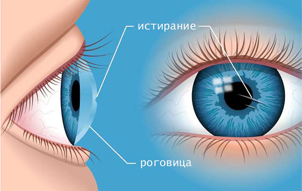 Роговица глаза - строение, функция, заболевания