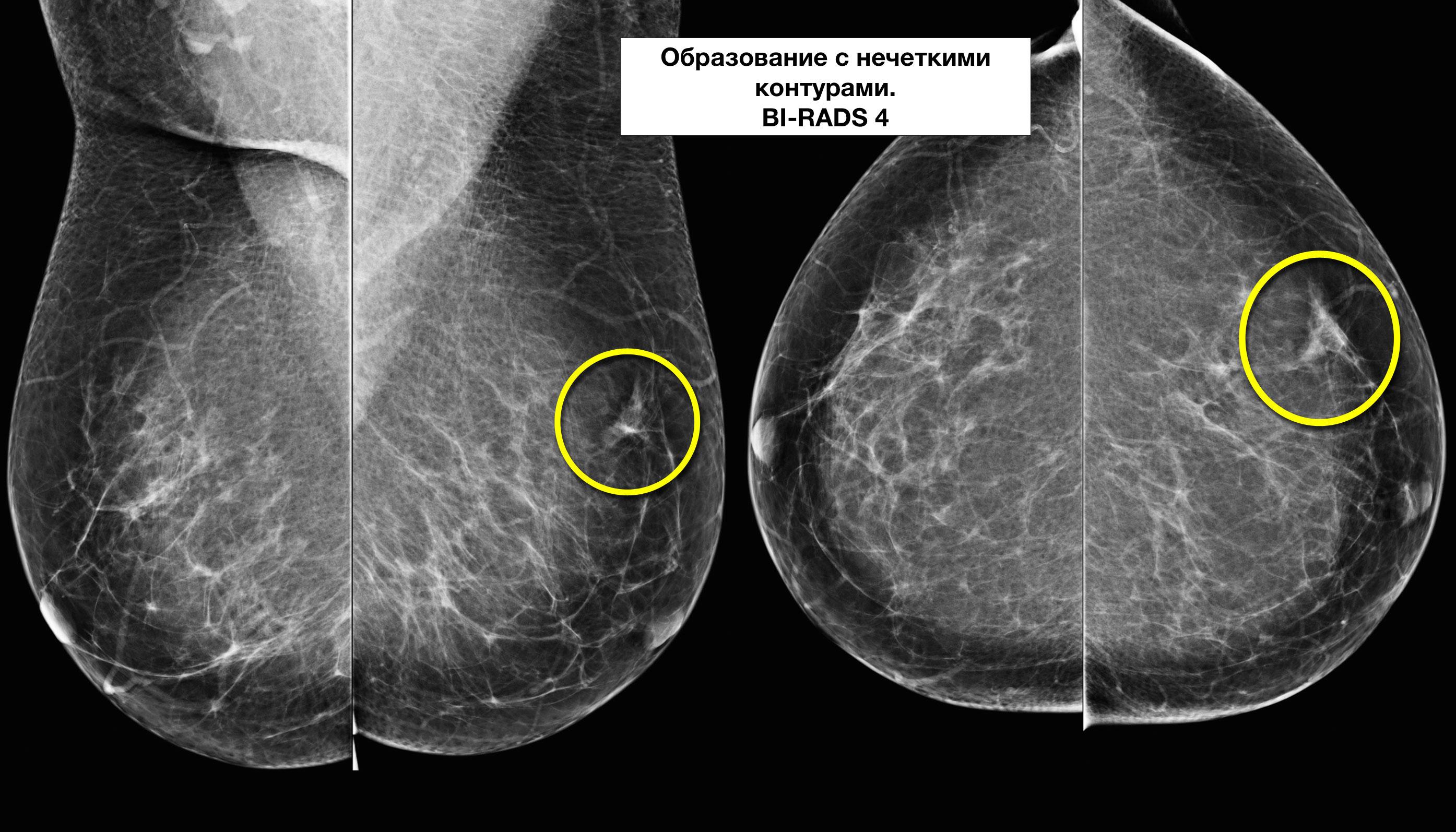 Маммография молочной железы: показания, как делают