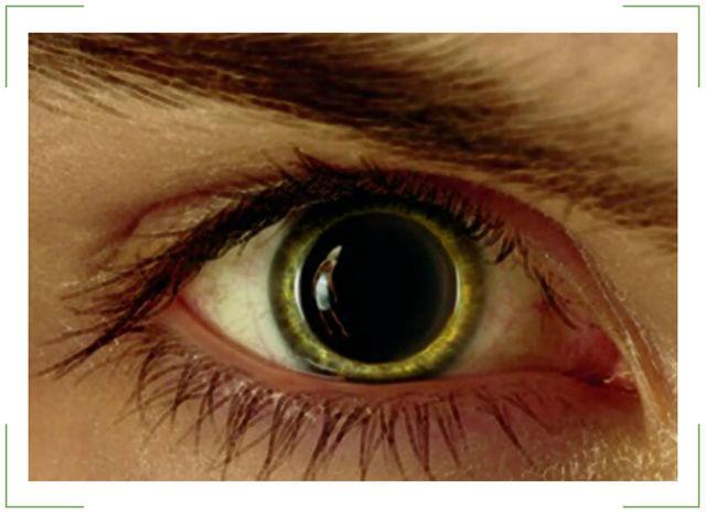 Мидриаз (mydriasis) что это такое, причины и лечение