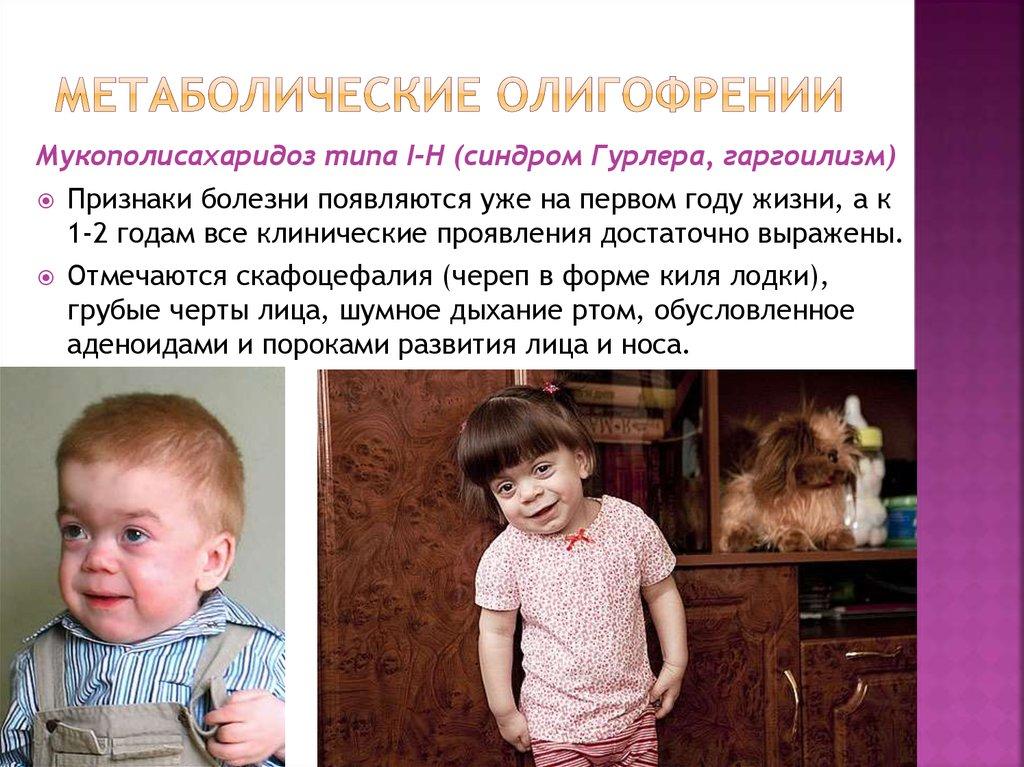 Что такое олигофрения и кто они — олигофрены? - невролог.ру