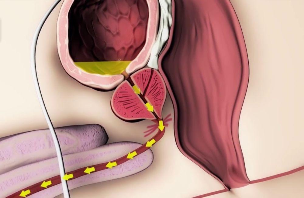Простата у мужчин что это такое — сайт о простатите
