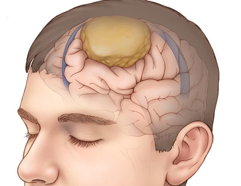 Менингиома головного мозга: как предупредить болезнь