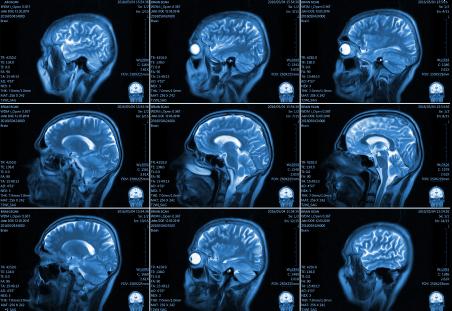 Киста головного мозга: опасные последствия заболевания