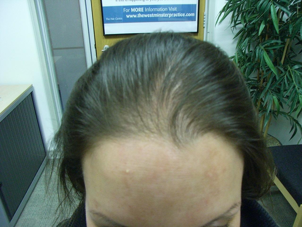 Лечение алопеции (облысения) у женщин: как и чем лечить этот недуг, консервативные и хирургические методы, а также народные средства