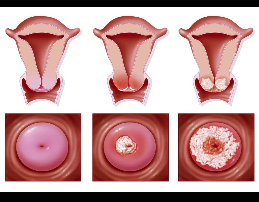 Неочевидные плюсы радиоволнового лечения дисплазии шейки матки первой степени