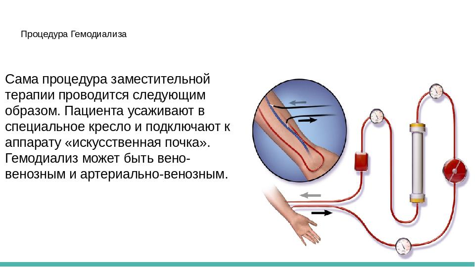 Гемодиализ — википедия. что такое гемодиализ