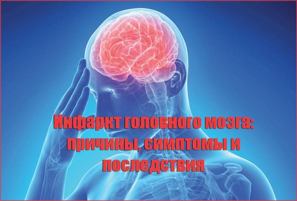 Причины возникновения инфаркта головного мозга и основные симптомы