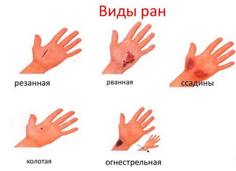 Виды ран и их характеристика (классификация): первая помощь и способы обработки ран в зависимости от характера повреждения