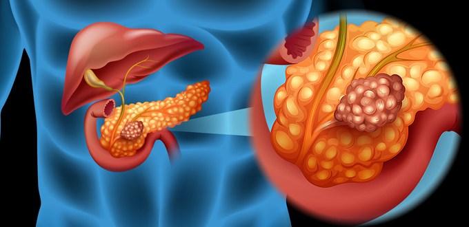 Что такое синдром золлингера-эллисона? синдром золлингера-эллисона: причины, клиническая картина, лечение