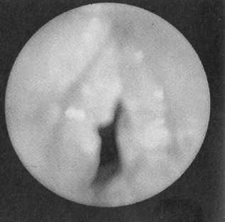 Что такое абсолютный стеноз позвоночного канала и как его лечить?