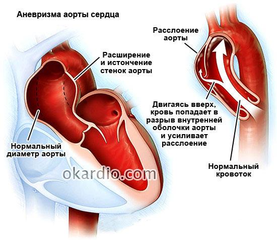 Аневризма сердца что это такое