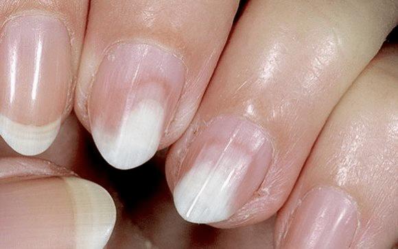 Онихолизис ногтей лечение препараты недорогие но эффективные - женский журнал