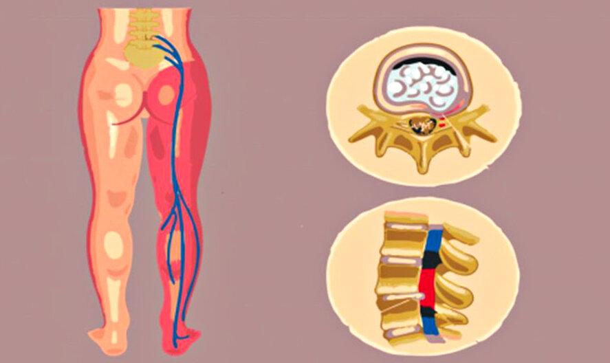 Что такое радикулит спины, каковы его симптомы и лечение?