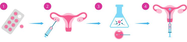 Метод имси при эко – что это такое и чем отличается от икси и пикси