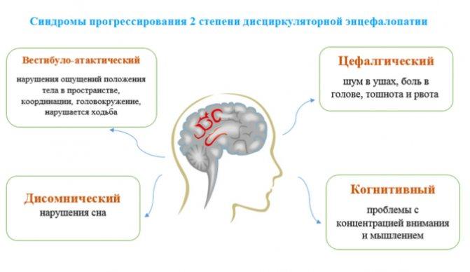 Дисциркуляторная энцефалопатия: причины, симптомы, диагностика и лечение