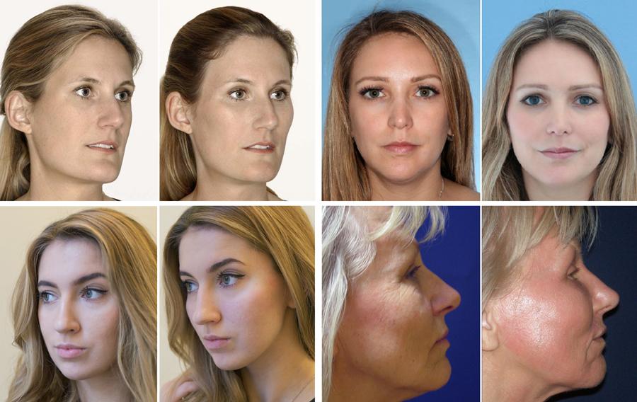 Хирургическая подтяжка лица - 7 видов операций: спейслифтинг, чек-лифтинг, s-лифтинг, ретидэктомия, подкожный лифтинг, smas, эндоскопия