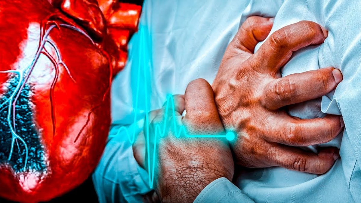Инфаркт миокарда: причины, симптомы, лечение
