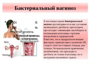 Бактериальный вагиноз, причины, симптомы, лечение