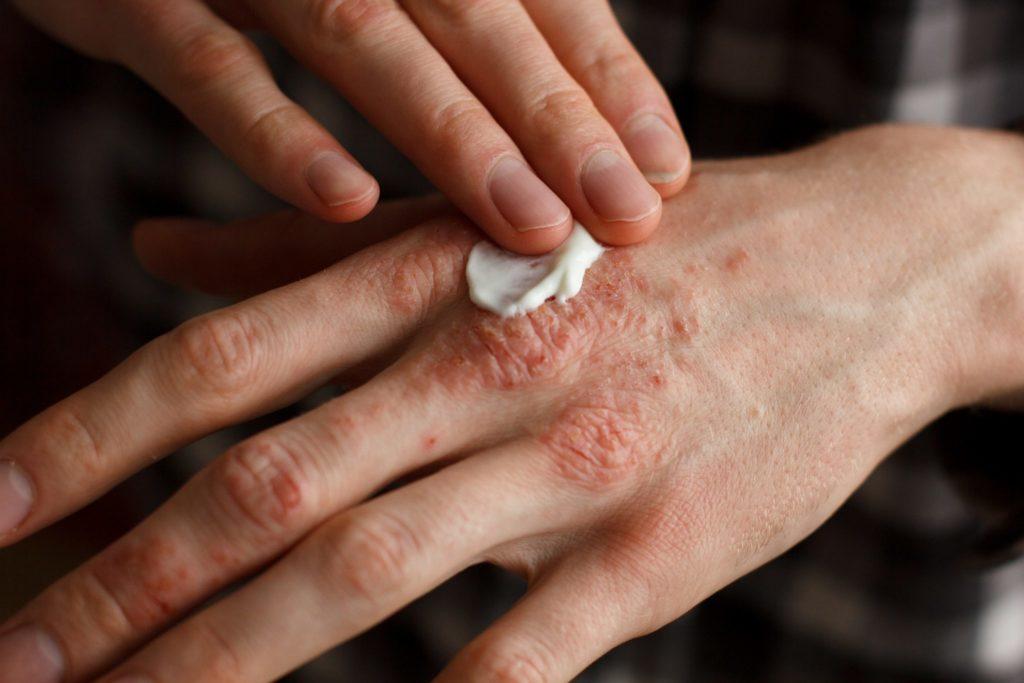 Цыпки на руках: 25 действенных способов лечения, фотографии заболевания