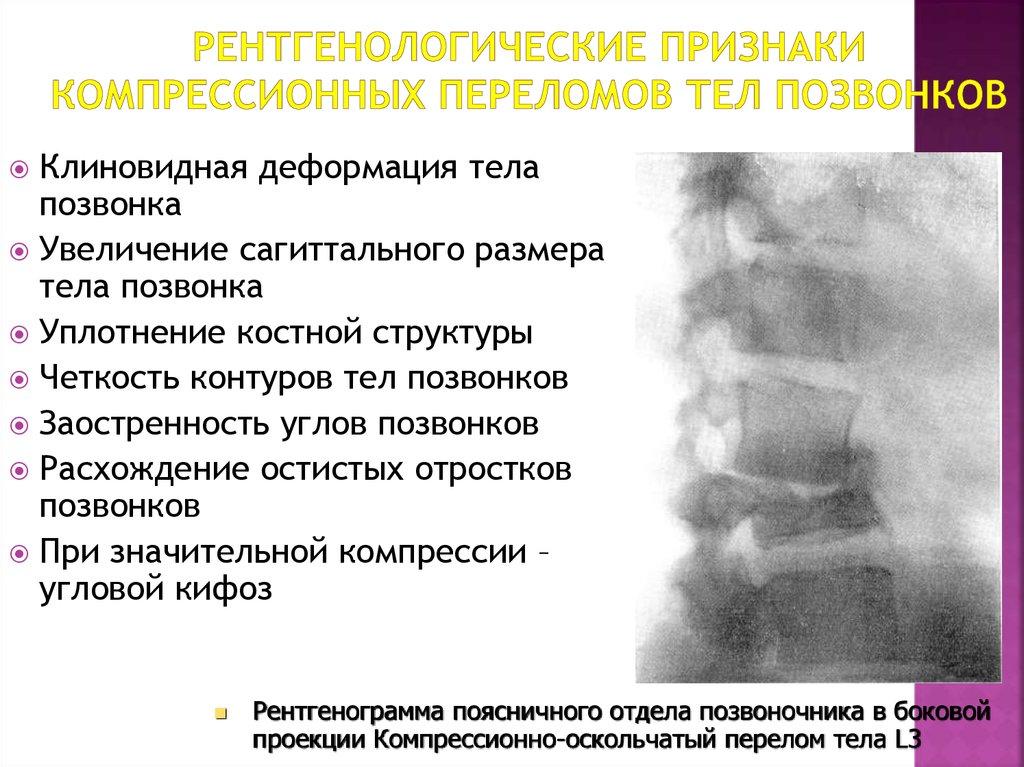 Компрессионный перелом поясничного позвонка: причины, симптомы, последствия и лечение