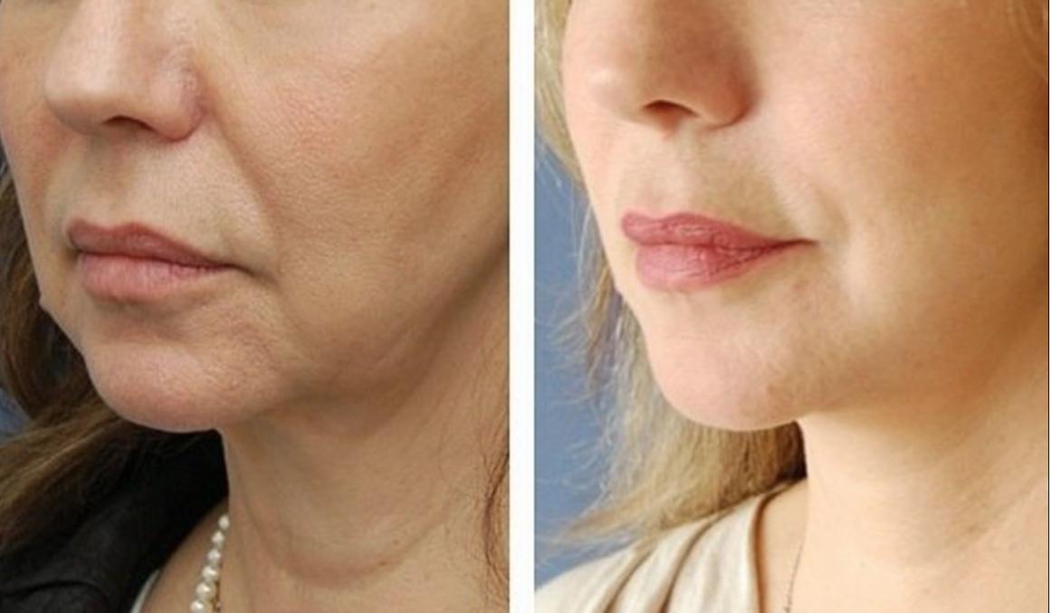 Как убрать брыли на лице: пластика, упражнения и косметология