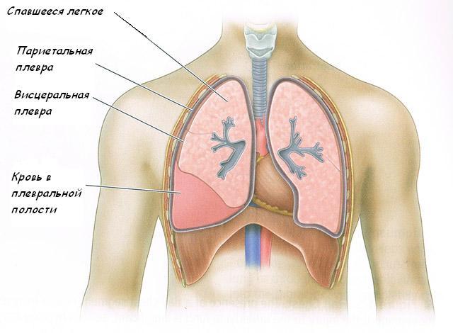 Гидроторакс лёгких: что это такое, виды, причины возникновения, лечение pulmono.ru гидроторакс лёгких: что это такое, виды, причины возникновения, лечение