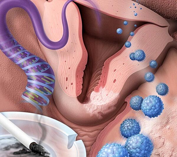 Дисплазия шейки матки 2 степени: причины, симптомы, диагностика и лечение