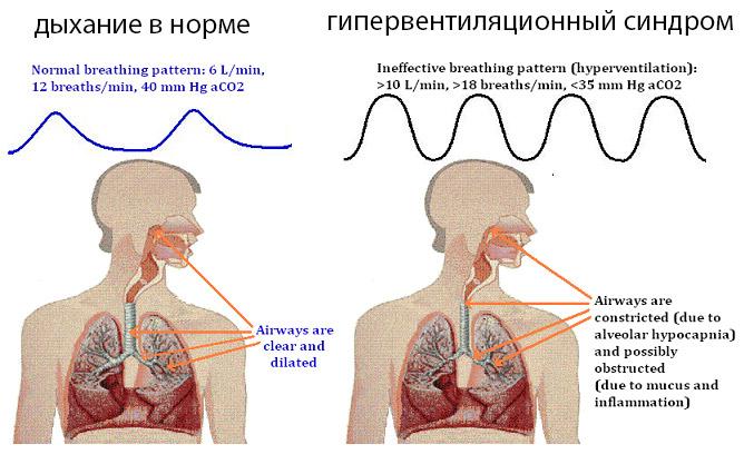 Гипервентиляционный синдром: причины, признаки, диагноз, как лечить