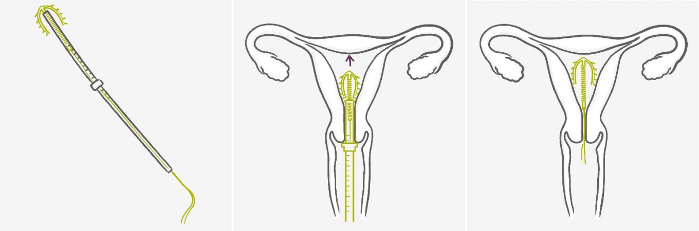 6 лучших внутриматочных спиралей: как выбрать? обзор популярных вмс для надежной контрацепции