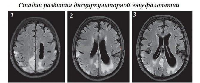 Дисциркуляторная энцефалопатия 1 степени: что это такое и как лечить