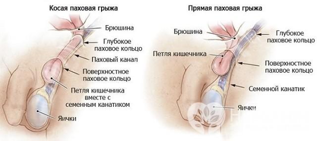 Паховая область — большая медицинская энциклопедия
