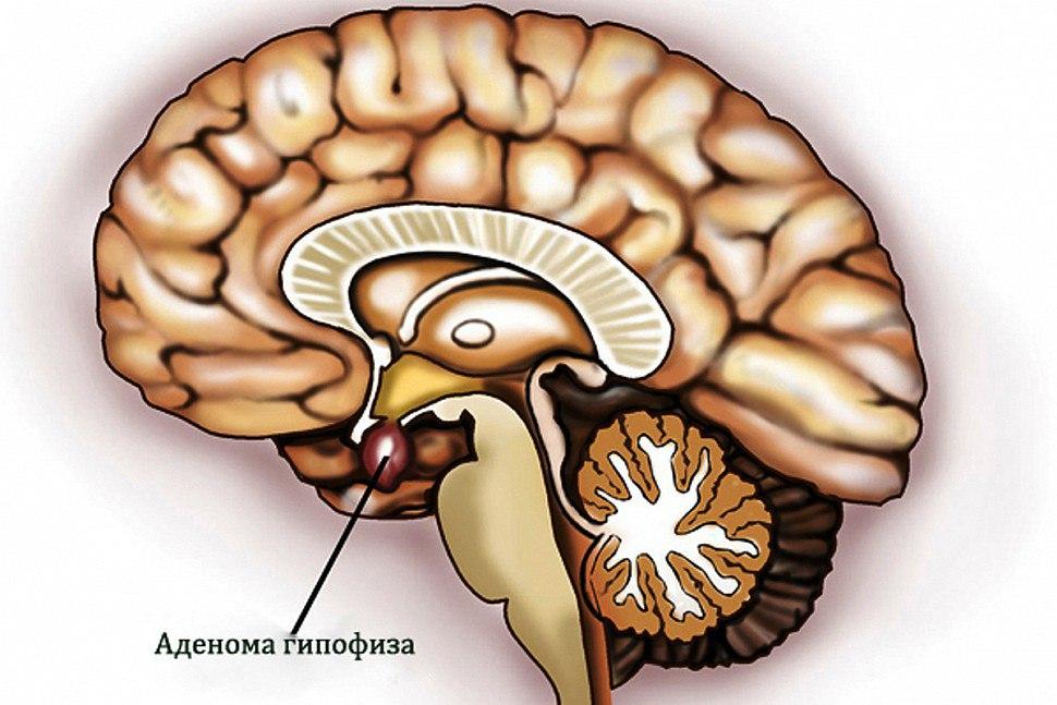 Признаки и методы лечения аденомы гипофиза головного мозга