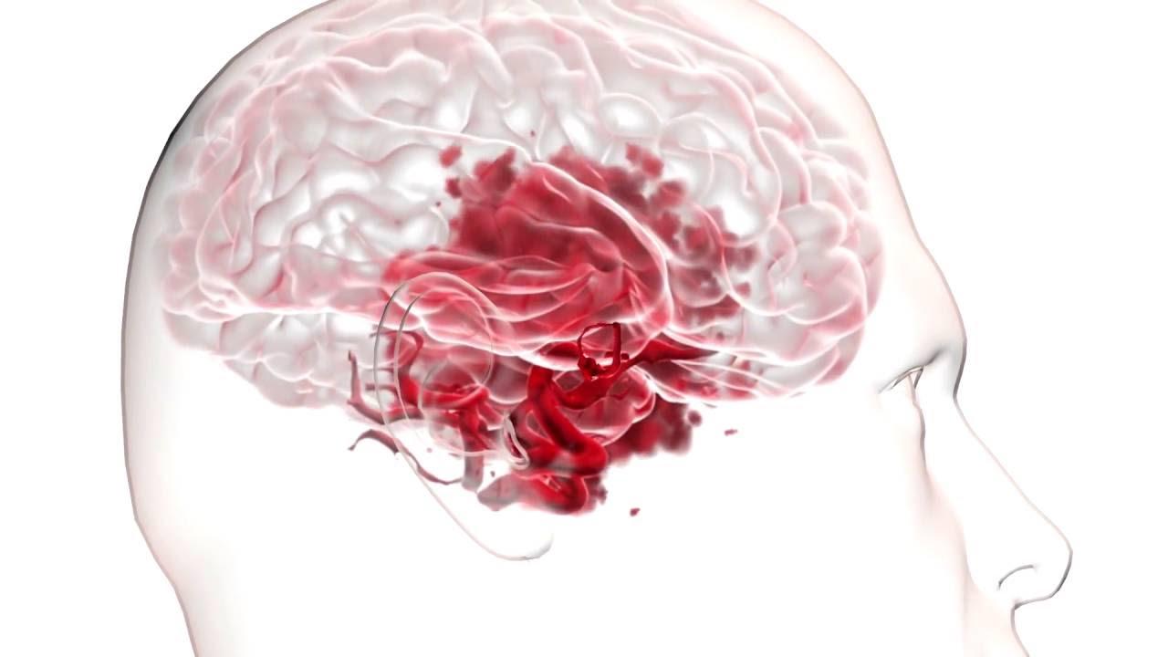 Почему развивается аневризма головного мозга и основные методики ее лечения