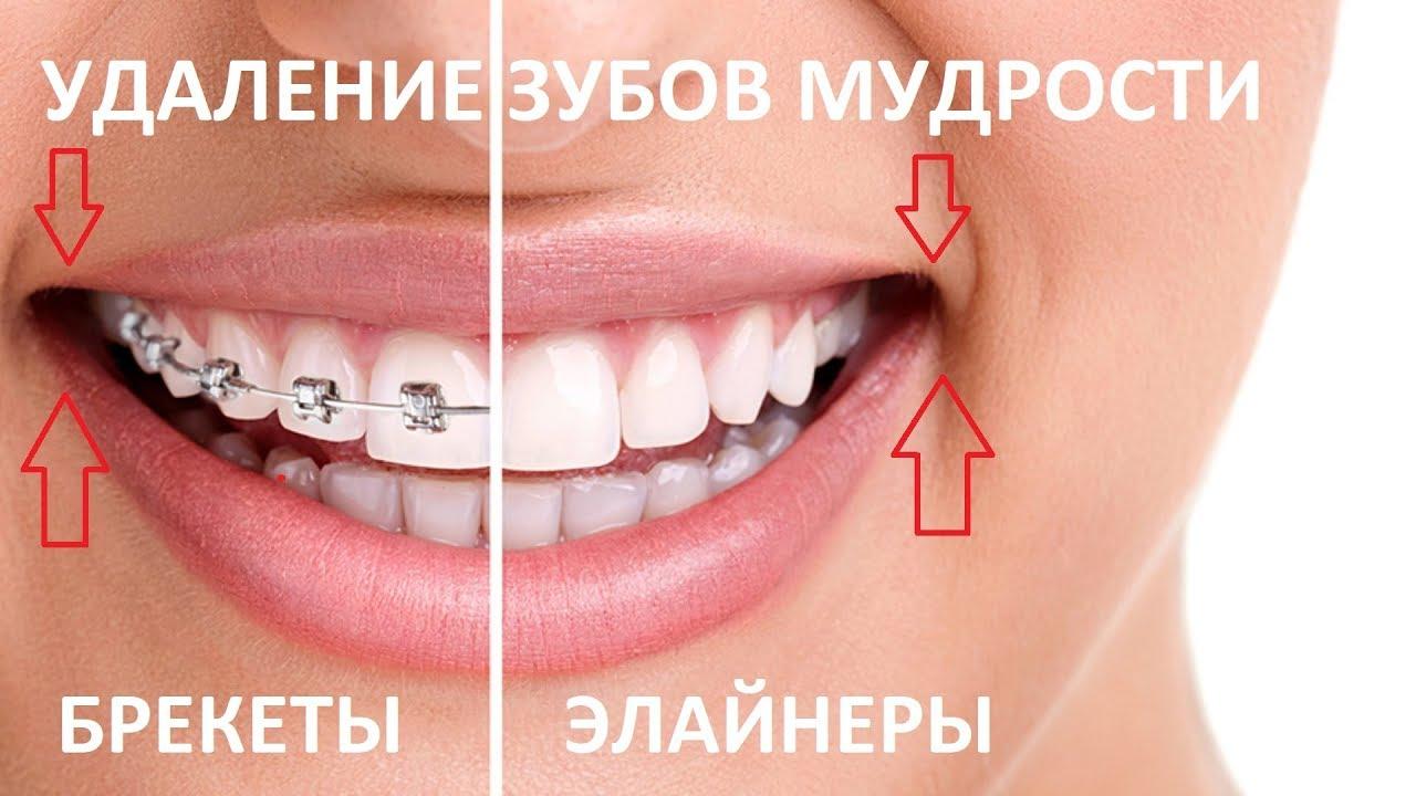 Что значит ретинированный зуб