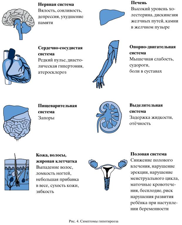 Субклинический гипотиреоз: симптомы, лечение, прогноз терапии