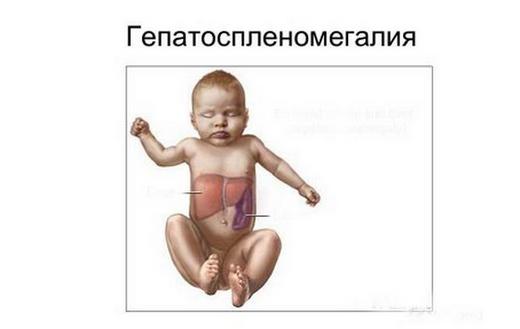 Спленомегалия: что это за болезнь, как лечить, причины