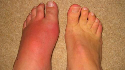 Причины, симптомы и лечение подагры у мужчин, характерные особенности