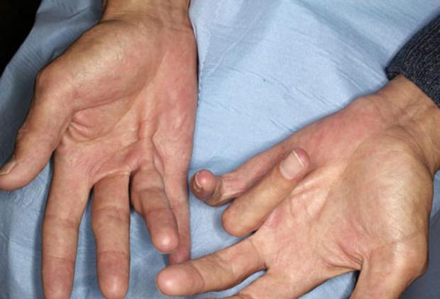 «ногу свело» — мышечные спазмы, судороги